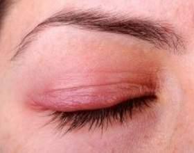Блефарит: що це за хвороба і як лікувати фото