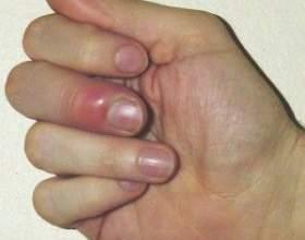 Що робити якщо наривається палець фото