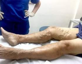 Що робити, якщо виступають вени на ногах, причини виникнення патології фото