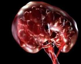 Що таке сольовий діатез нирок і чим він небезпечний? фото