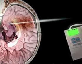 Що значить підвищений внутрішньочерепний тиск фото
