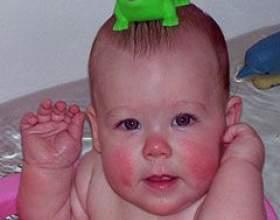 Діатез у грудних дітей фото