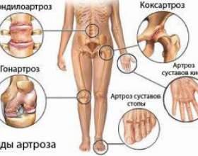 Фізкультура при артрозі - лікування захворювання фото