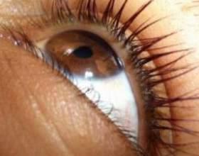 Глаукома - лікування народними засобами: масаж, трави та рекомендації фото