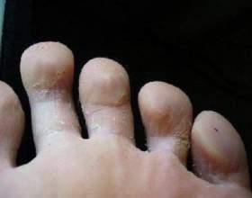 Грибок на пальцях ніг фото