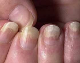 Грибок нігтів на руках фото