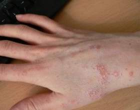 Інкубаційний період корости: симптоми, ознаки та лікування фото
