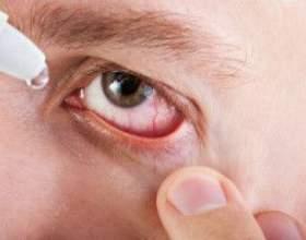 Інструкція до антибіотика: очні краплі флоксал проти інфекцій фото