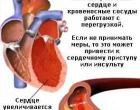 Вимірювання артеріального тиску: інтерпретація результатів фото