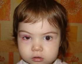 Ячмінь на оці у дітей. Як лікувати? фото