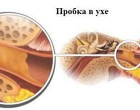 Ефективні ліки і засоби від вушних пробок фото