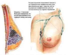 Це потрібно знати кожній жінці: перші ознаки раку грудей фото