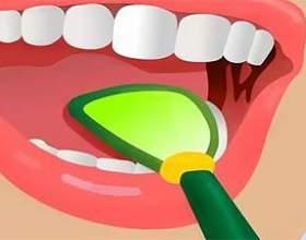 Як швидко позбавитися від запаху з рота фото