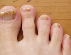 Як використовувати йод для лікування нігтів? фото