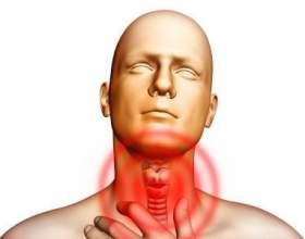 Сильно болить горло: що робити і чим лікувати фото