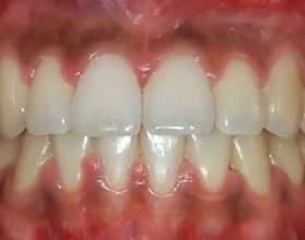 Як полегшити біль в яснах: заходи, якщо запалилася щелепу під зубами фото
