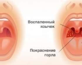 Як проводиться лікування горла гасом? фото