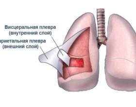 Плеврит: симптоми і особливості перебігу захворювання у дорослих фото