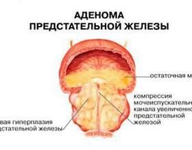 Як самостійно вилікувати простатит і аденому простати? фото