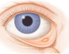 Корнерегель: швидке відновлення рогівки ока. Інструкція по застосуванню фото
