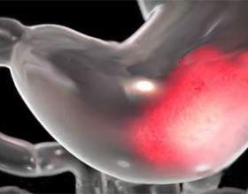 Які ознаки у виразки шлунка, коли потрібна операція фото