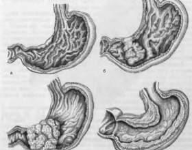 Які можливі ускладнення виразкової хвороби шлунка фото