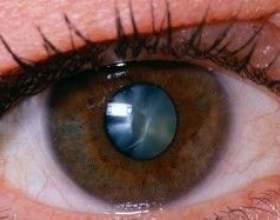 Катаракта: причини виникнення та симптоми захворювання фото