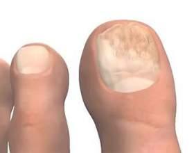Хто лікує грибок нігтів фото