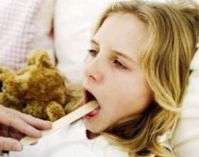 Лікування ангіни в домашніх умовах - 11 рецептів фото