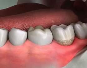 Лікування ясен і зубів фото