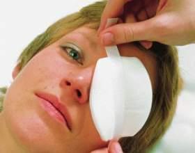 Лікування ячменю на оці в домашніх умовах - ефективні компреси і примочки фото