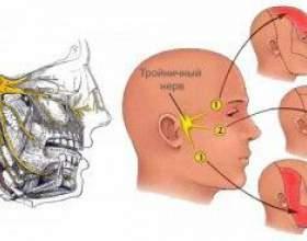 Лікування трійчастого нерва: фізіотерапія і народні засоби фото