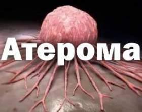 Медичні передумови до появи атероми і лікування патології в домашніх умовах фото