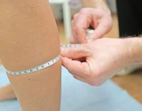 Місцеві та системні причини набряків на ногах нижче колін фото
