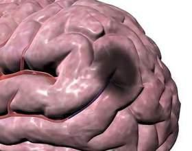 Чи можна запобігти інсульту при гіпертонічній хворобі фото