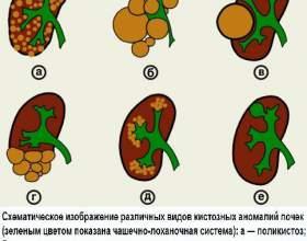 Народна медицина при кісті на нирці. Рецепти фото