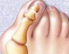 Неприємний наріст на суглобі пальця фото