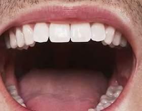 Неприємний запах з рота: причини і методи лікування фото