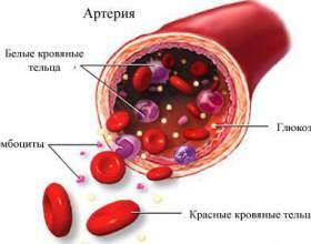 Про що говорить підвищений рівень глюкози в крові? фото