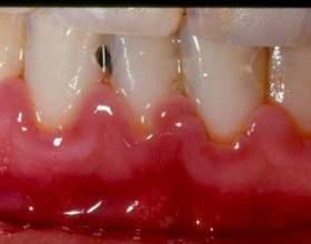 Про що може свідчити присмак крові в роті? фото