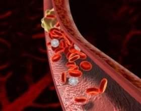 Про тромбозі глибоких вен: клініка і терапія фото