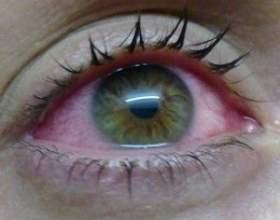 Окомістин краплі для здорових очей фото