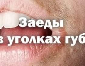 Особливості появи заїду в куточках губ, причини і лікування недуги фото
