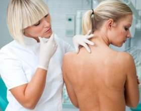 Особливості розвитку та лікування атероми на спині фото