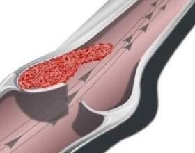 Особливості венозного тромбозу: що потрібно знати про нього? фото