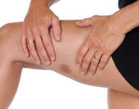 Звідки беруться синці на ногах без видимої причини у жінок? фото