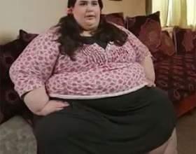 Ожиріння: як визначити, позбавитися від зайвої ваги, контролювати його фото