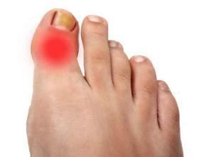 Причини і методи лікування запалення суглоба великого пальця ноги фото
