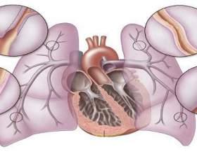 Причини і принципи лікування легеневого серця фото