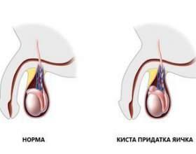 Причини появи і симптоматика кісти придатків яєчників фото